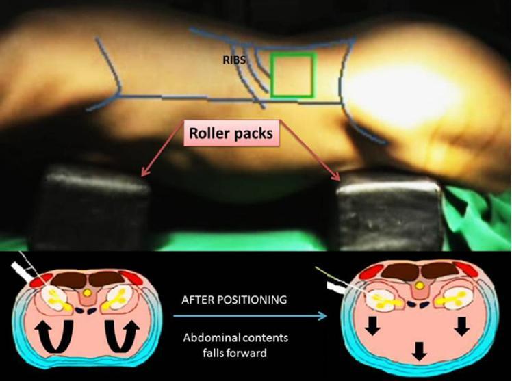 Percutaneous nephrostomy step by step