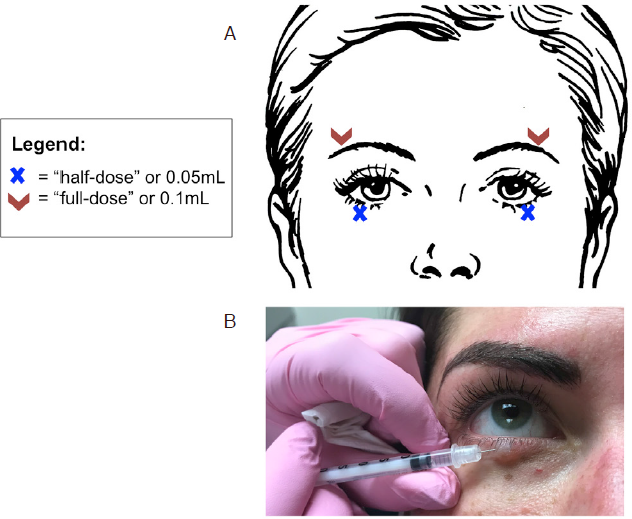 Periocular rejuvenation with neurotoxin and dermal filler