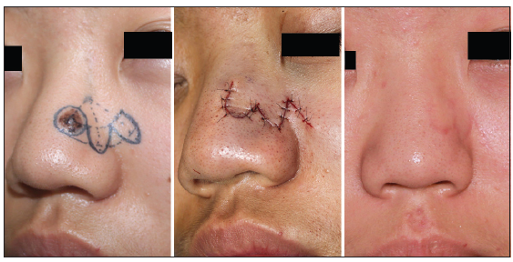 A modified bilobed flap design for nasal tip defects