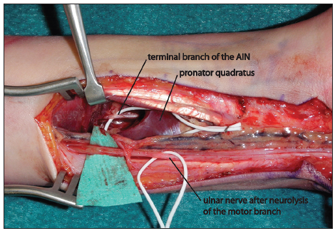 Nerve transfers of the forearm and hand: a review of current