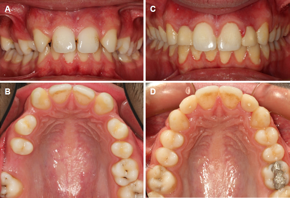Etiology And Treatment Alternatives In Tooth Agenesis A Comprehensive Review