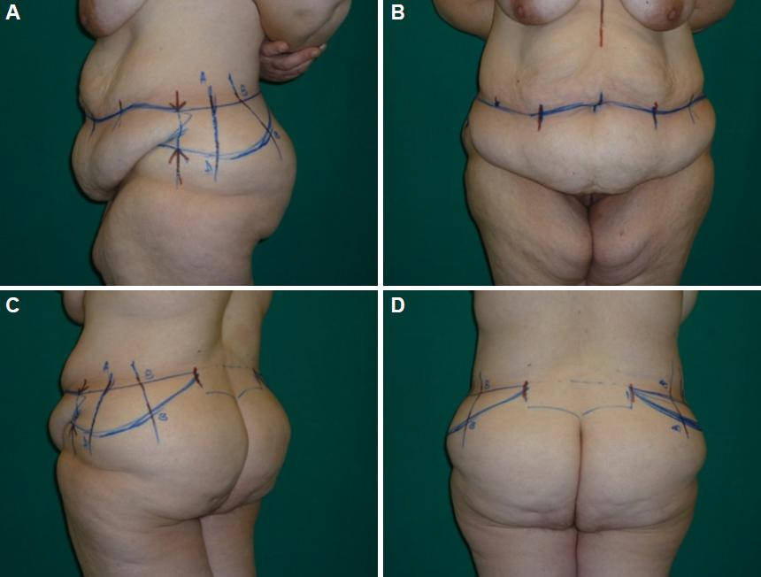 The Experience Performing Extended Abdominoplasty In Massive Weight
