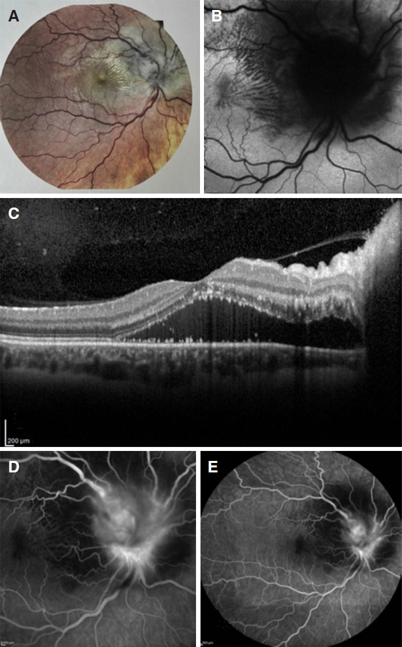 Bartonella henselae neuroretinitis in a patient without cat