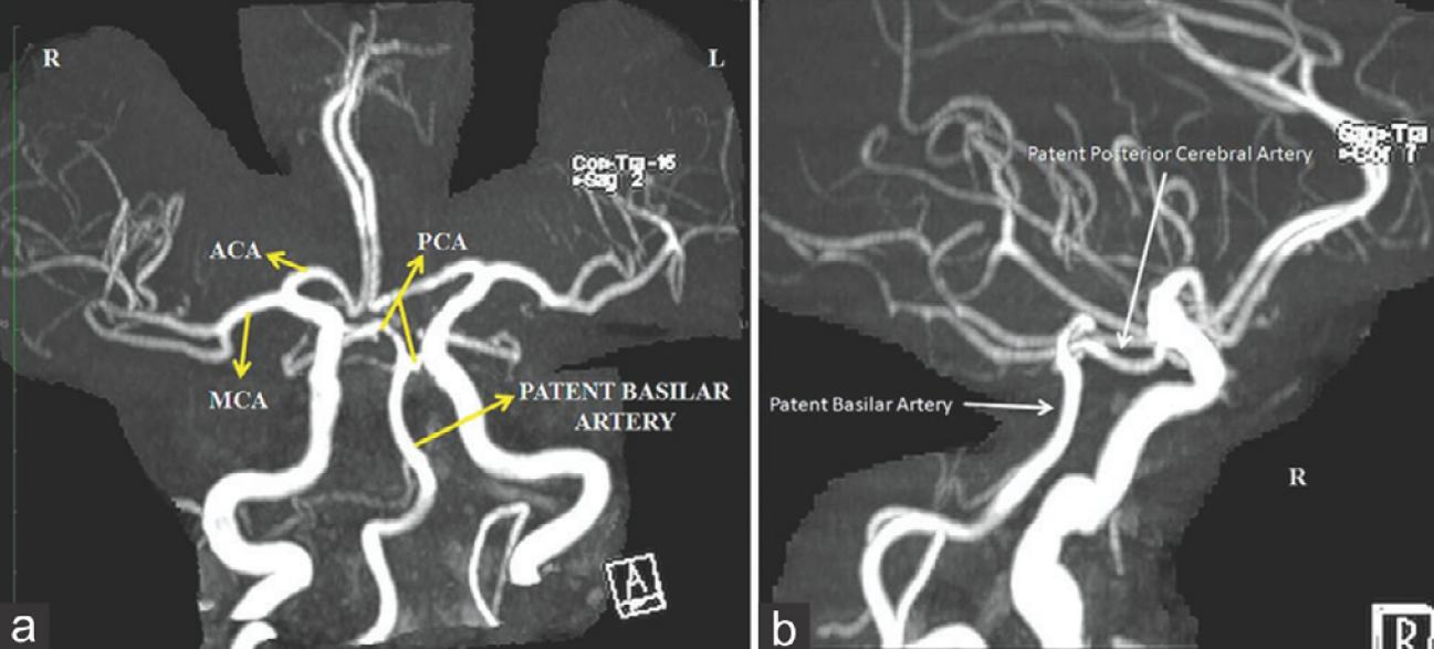 Artery of Percheron occlusion: role of diffusion-weighted