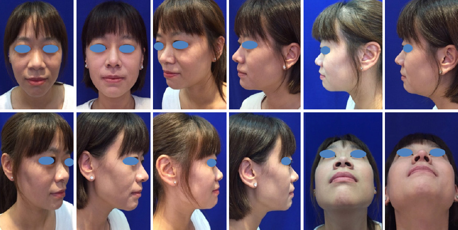 Costal cartilage graft in Asian rhinoplasty: surgical techniques