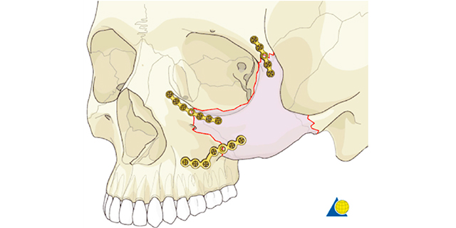 6c2667d4194 Surgical management of zygomatic complex fractures in a major trauma centre
