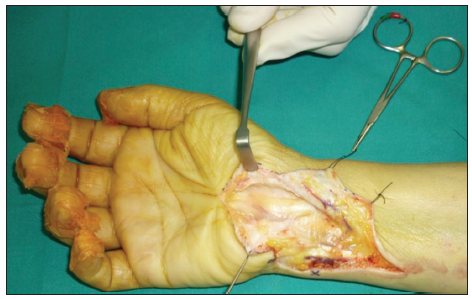 Painful scar neuropathy: principles of diagnosis and treatment