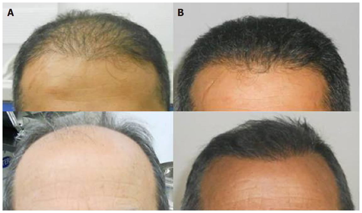 Evolution of hair transplantation