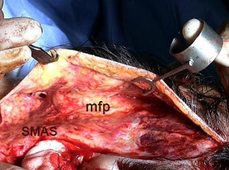 The temporal endoscopic midface lift - centrofacial