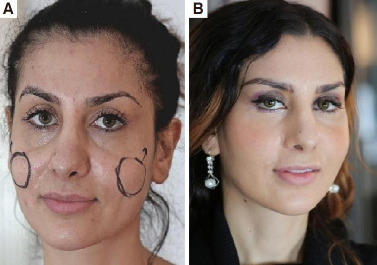 The temporal endoscopic midface lift - centrofacial rejuvenation