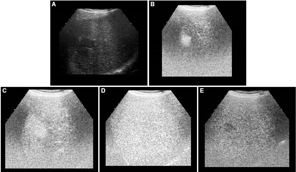 Radiological diagnosis of hepatocellular carcinoma in non