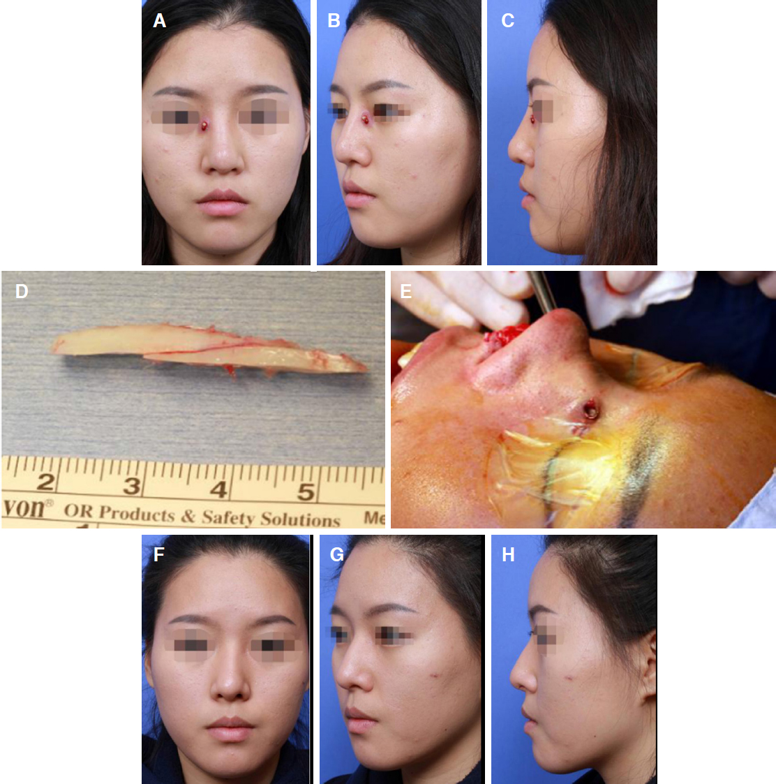 Revision rhinoplasty using autologous rib cartilage in Asians