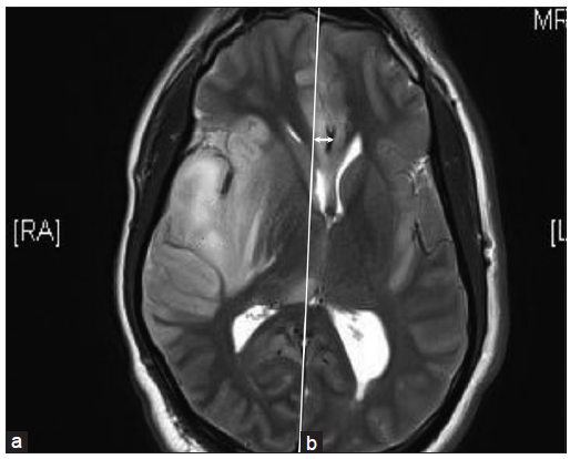 Decompressive Craniectomy In Herpes Simplex Encephalitis