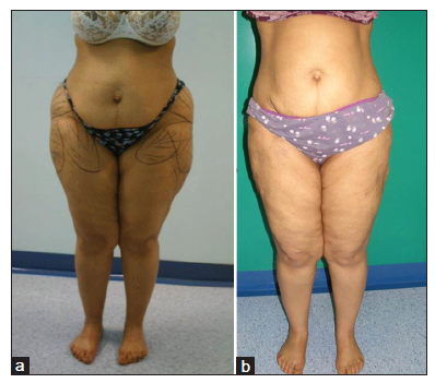 Liposuction for chronic medical diseases and noncosmetic