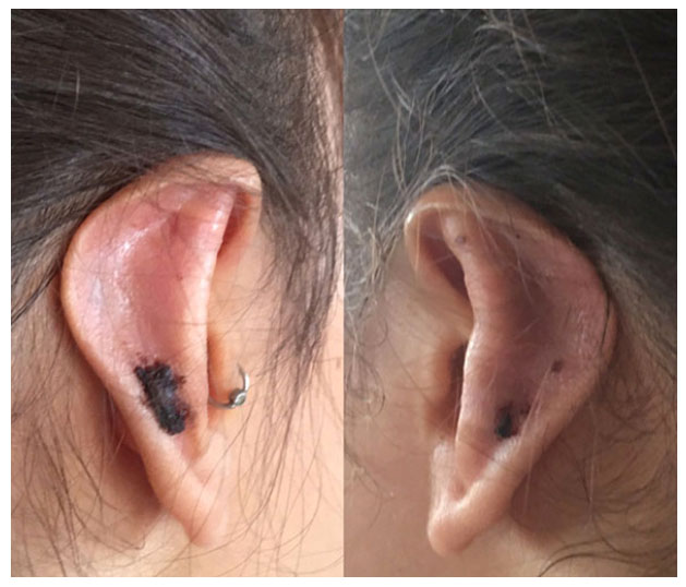 Early Experiences With The Use Of Earfold For Correction Of