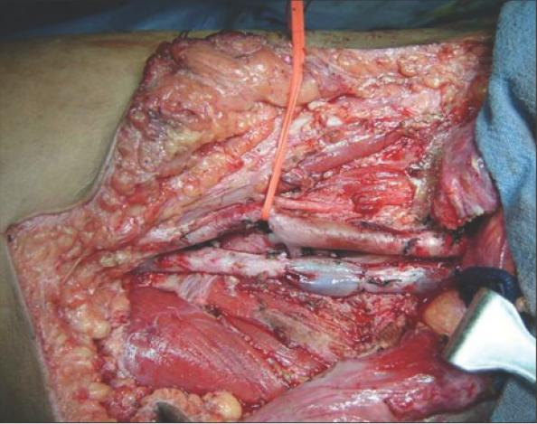 Metastatic inguinal lymph nodes with two different