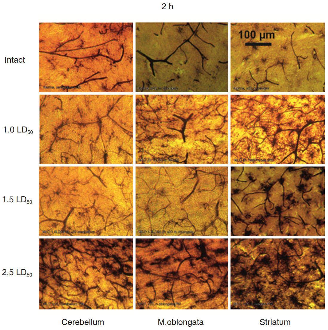 Changes In Microglia Activity Of Rat Brain Induced By
