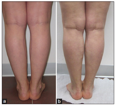 Hyaluronic acid in calves defects correction