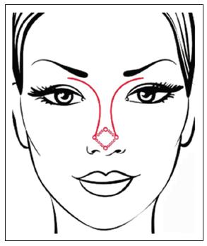 Nasal dorsal aesthetic lines and rhinoplasty technical tricks