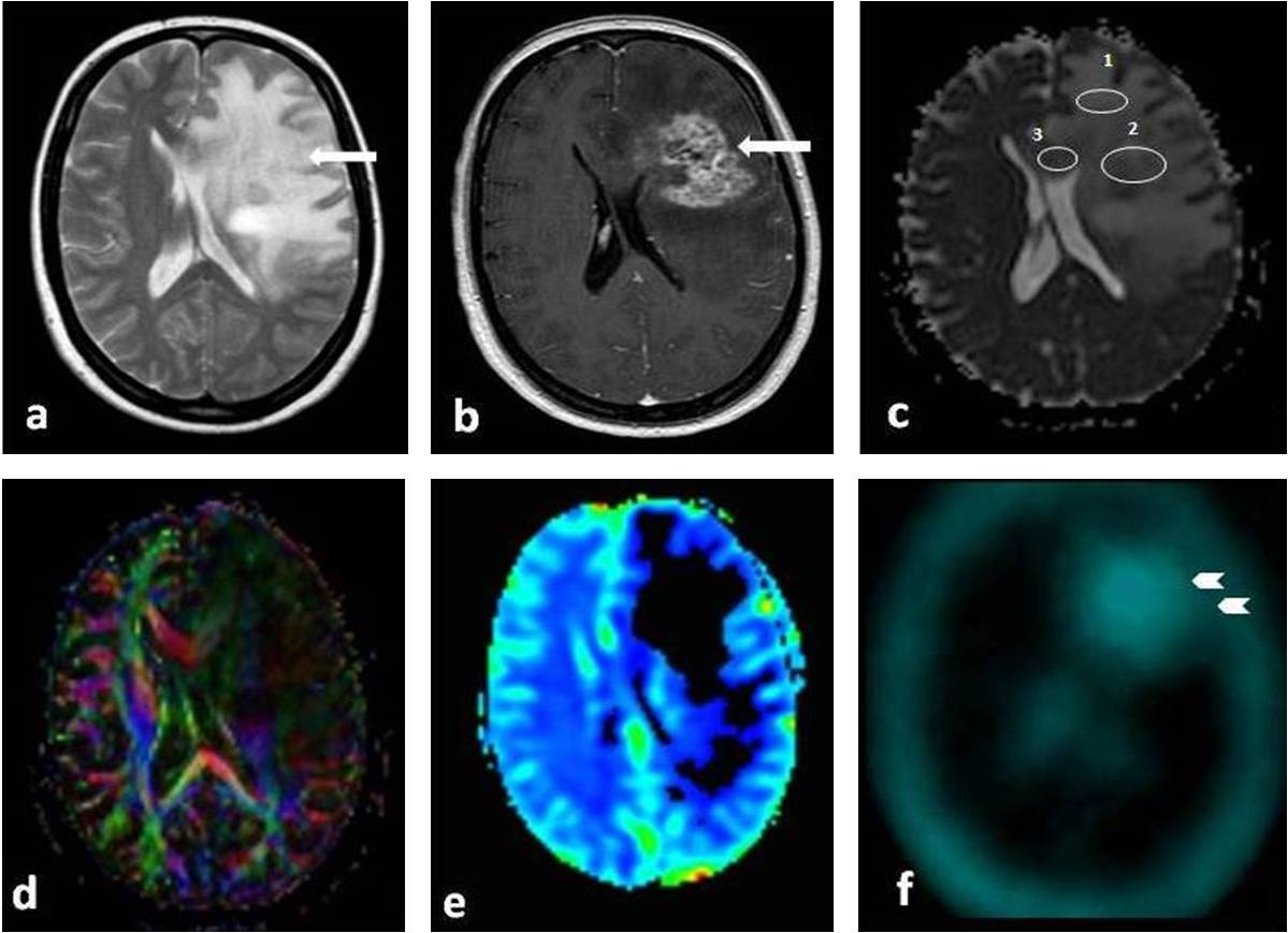 Differentiation of radiation necrosis from glioblastoma recurrence