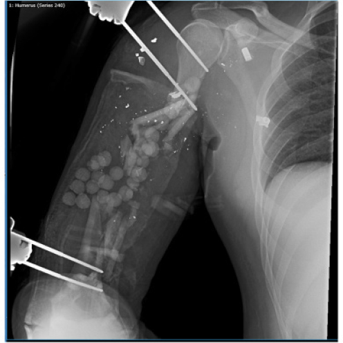 Reconstruction of extremity long bone defects with vascularized
