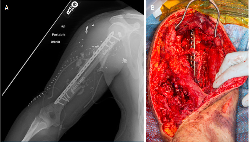 Reconstruction of extremity long bone defects with