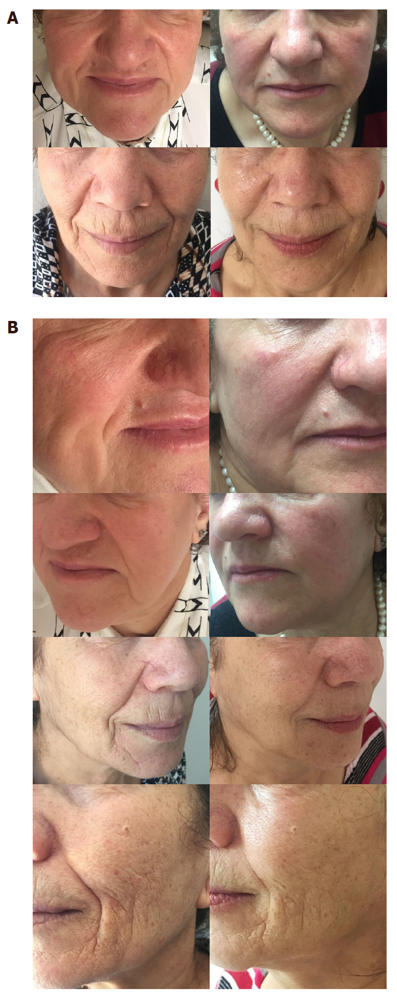 Permanent volumizing and contouring of the lower face using 350