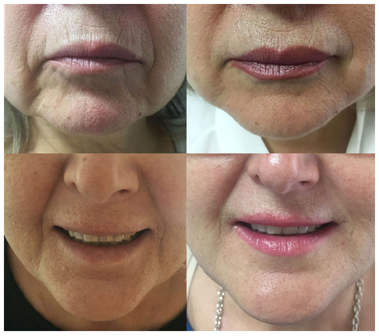Permanent volumizing and contouring of the lower face using