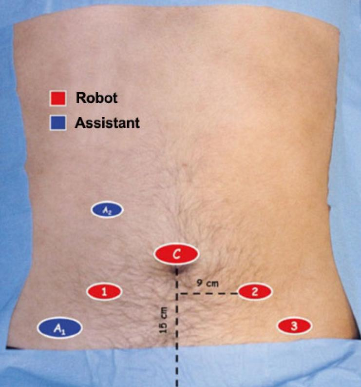 Robot Assisted Simple Prostatectomy With Temporary Internal Iliac