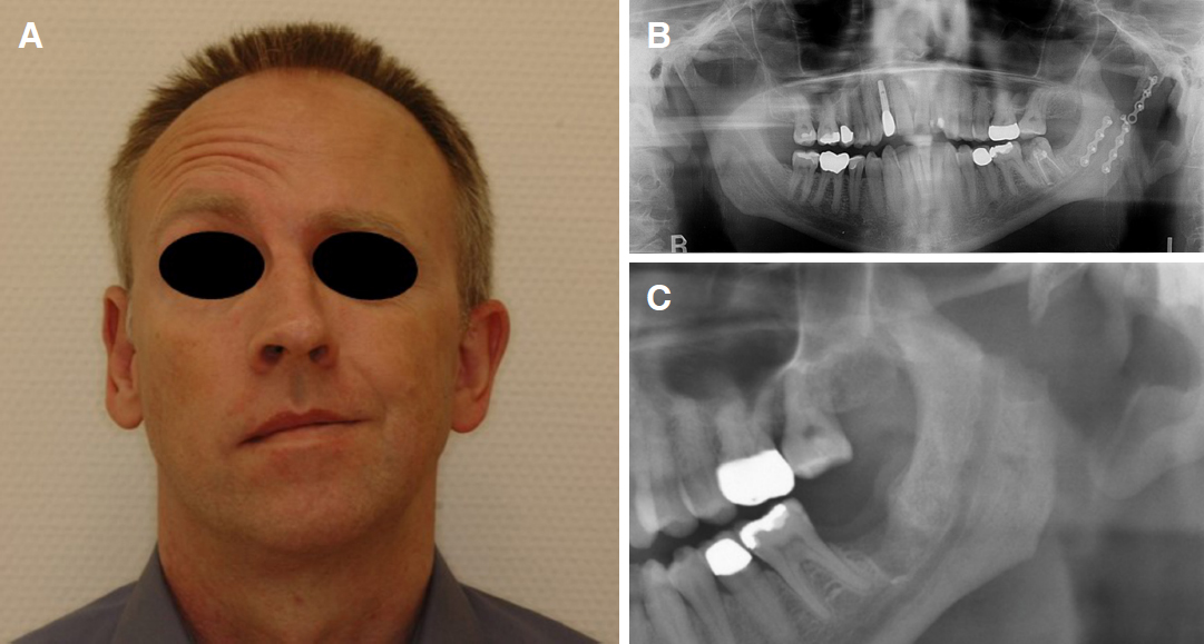 open jaw tmj surgery scar
