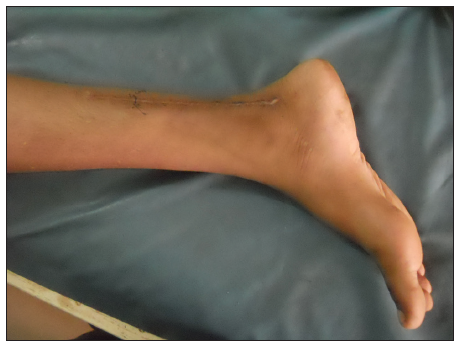 Isolated tibial nerve injury: a rare presentation