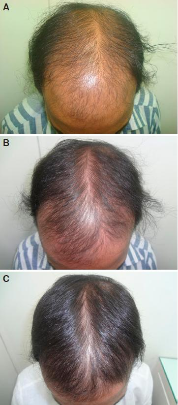 Controlled clinical trial for evaluation of hair growth with
