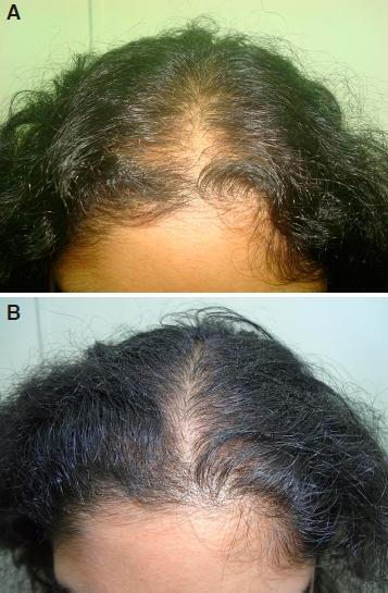Controlled Clinical Trial For Evaluation Of Hair Growth With Low Dose Cyclical Nutrition Therapy In Men And Women Without The Use Of Finasteride