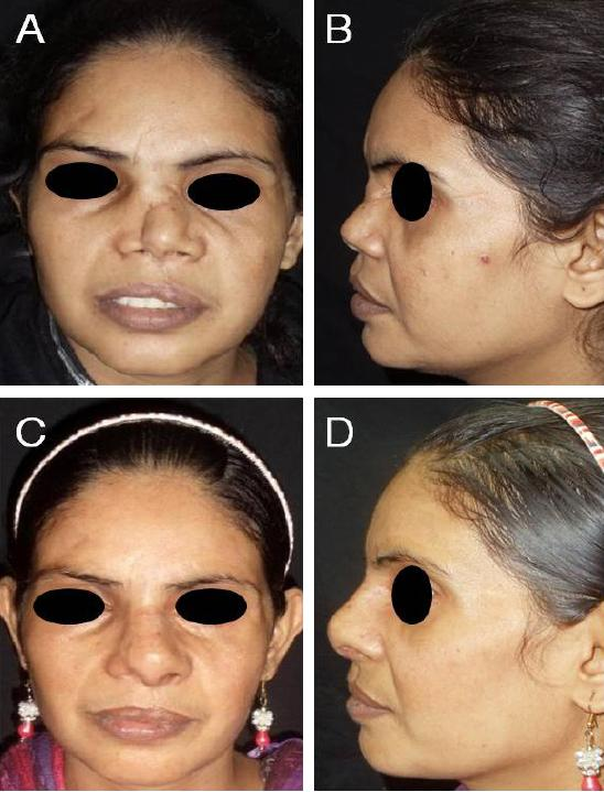 Total Nasal Septal Reconstruction Using Costal Cartilage In