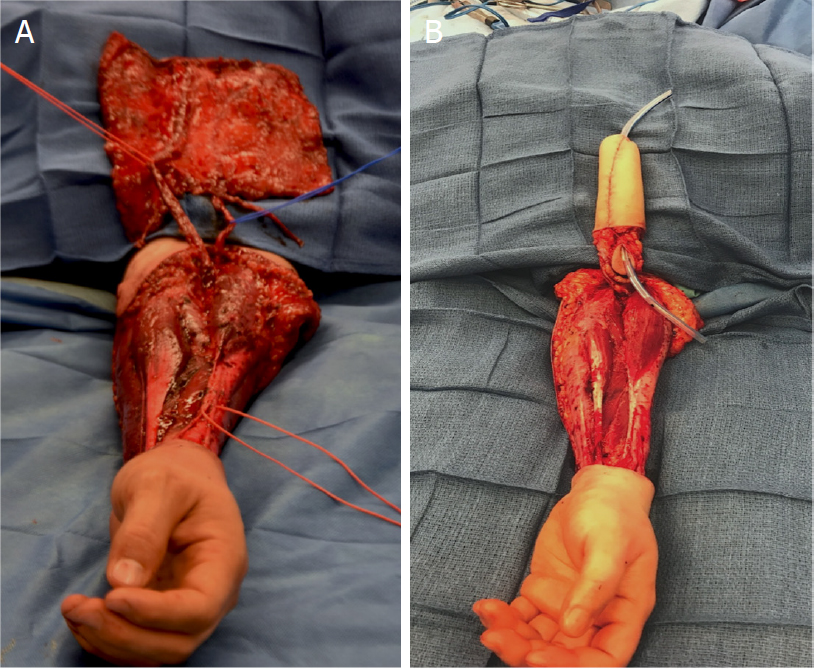 Phalloplasty Before And After