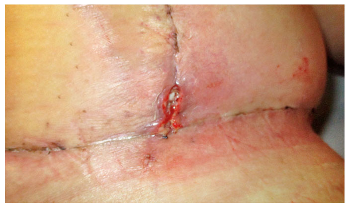 Wound Healing In Postbariatric Body Contouring Surgery