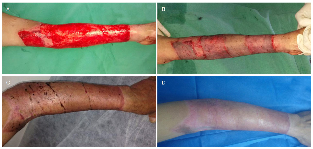 Skin Grafts - Indications, Applns and Current Research