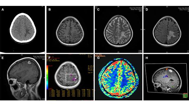 labeled diagrams human brain 444 x 444 70 kb jpeg brain lobeshome · labeled diagrams human brain 444 x 444 70 kb jpeg brain lobes labeled · neuroimmunology and neuroinflammation