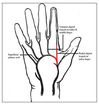 Options for thumb revascularization: our experience and ...