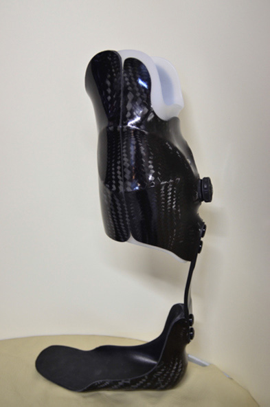 Prosthetic and orthotic options for lower extremity